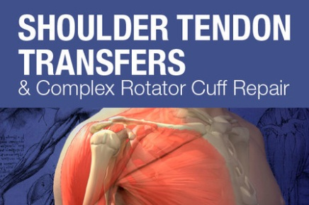 Mayo Clinic-Shoulder Tendon Transfers and Complex Rotator Cuff Repair